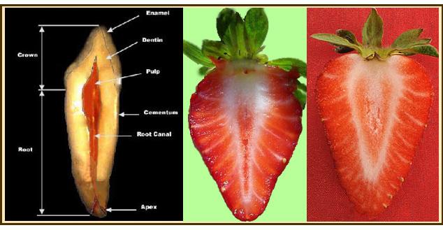 Fresa perdida dentro de la vagina